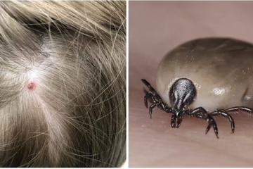 A Mother Says Her 5-Year-Old Was Temporarily Paralyzed From A Tick Bite On Her Scalp
