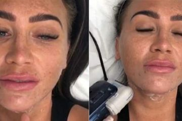 Lauren Goodger films herself getting non surgical FACE LIFT as fans plead with her to leave her skin alone
