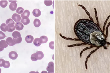 Here Are 8 Diseases You Can Get From Ticks You Probably Didn't Know Existed