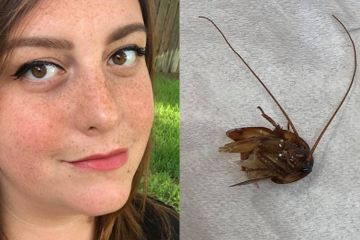 This Woman Got A Cockroach Stuck In Her Ear And OMG Nope