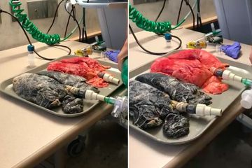 This Horrifying Video Of A Smoker's Lungs Shows Exactly Why You Shouldn't Light Up