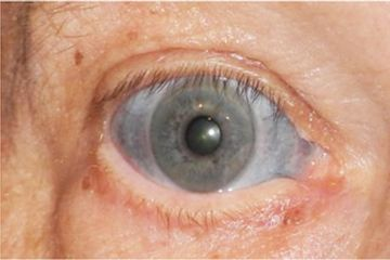 A Man's Eyes Were Stained Blue After He Took An Antibiotic To Treat Inflammation