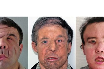 For The First Time In History, A Person Has Undergone Two Face Transplants