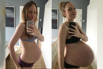 This is what having triplets does to your body (16 Photos)