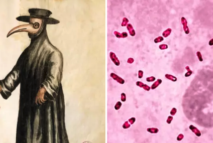 A Rare Case Of Plague Was Diagnosed In A Young Boy In Idaho