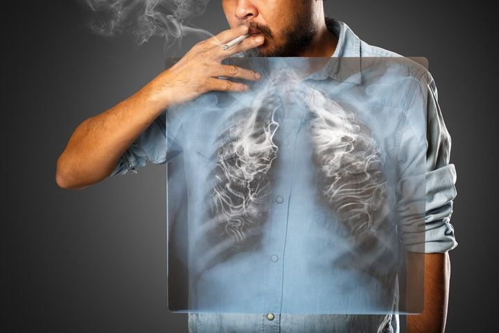 man-with-lung-cancer.jpg?resize=1024%2C683&ssl=1